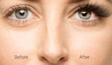 Gorgeous Lash - Before and After Photograph